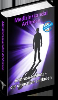 Arthrose Heilung